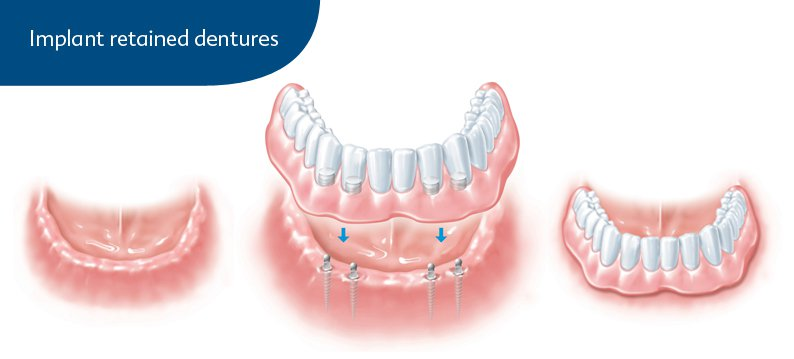 Implant Retained Dentures in Elmhurst, NY